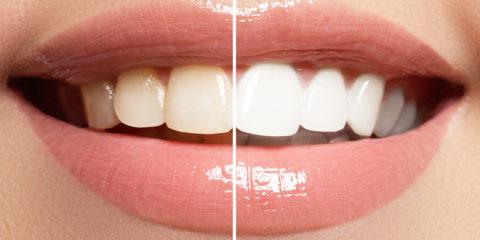 Zähne vor und nach dem Bleaching